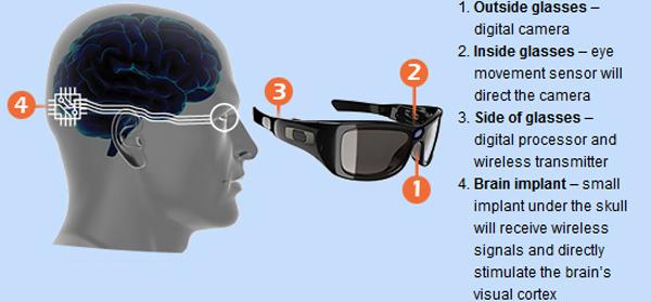 Implants for Restoring Vision