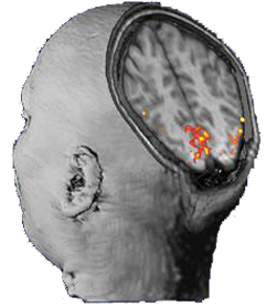FastMRI Detects Changes in Brain Activity