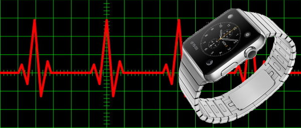 Deep Learning Uses Apple Watch to Detect Arrhythmia