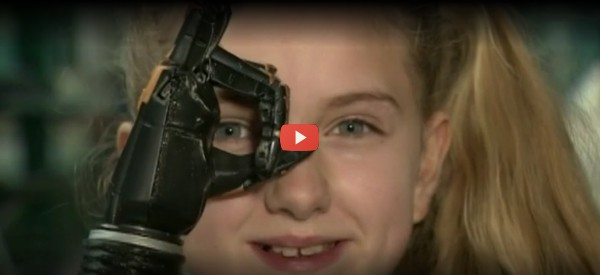 NHS Program Pilots Free 3D-Printed Prosthetic Hands [video]