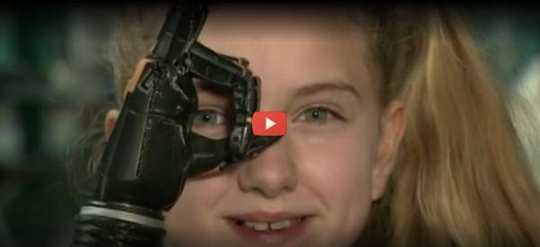 NHS Program Pilots Free 3D-Printed Prosthetic Hands [video]