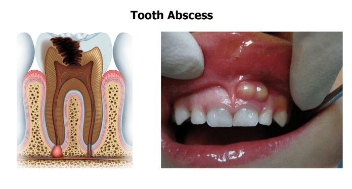 Periapical Abscess