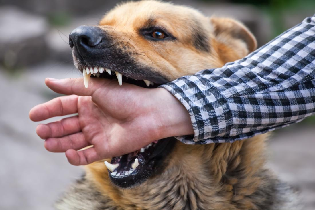 Dog Bite - Preventing Infections and Treating Injuries