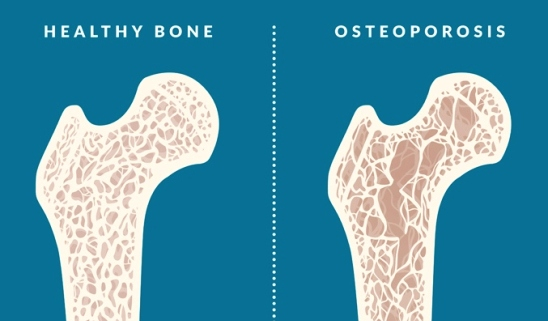 What is Osteoporosis, Osteoporosis Prevention