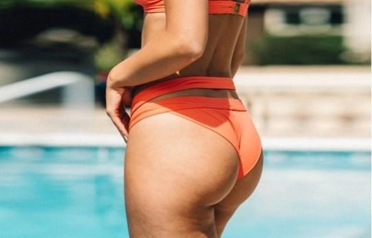 Woman after having a Brazilian Butt lift Surgery