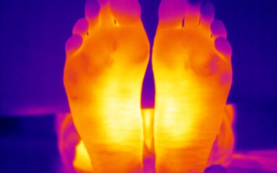 Diabetics in Somerset being sought to help develop new foot ulcer heat-mapping device