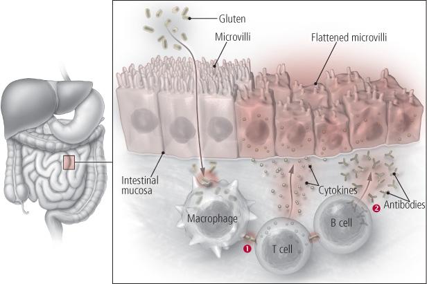 Глютен вредит здоровью уже в кишечнике