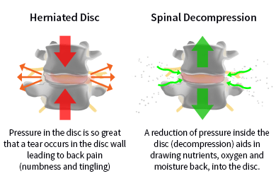 comparing a healthy and unhealthy spinal disc for back pain relief