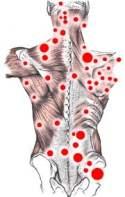Puntos que desencadenan la fibromialgia