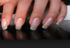 IF YOU DON'T HAVE HALF MOON SHAPE ON YOUR NAILS, VISIT THE DOCTOR URGENTLY!
