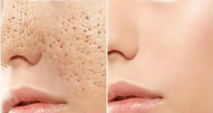 All Open Pores Will Disappear From Your Skin