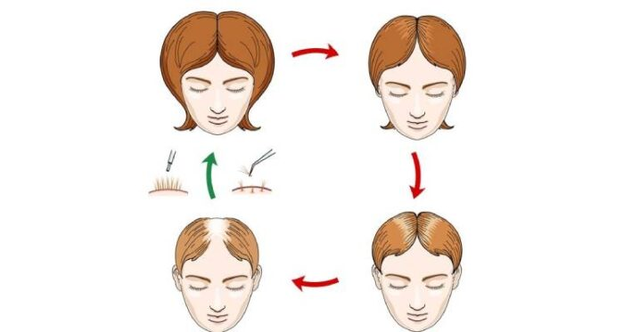 Stages of hair loss