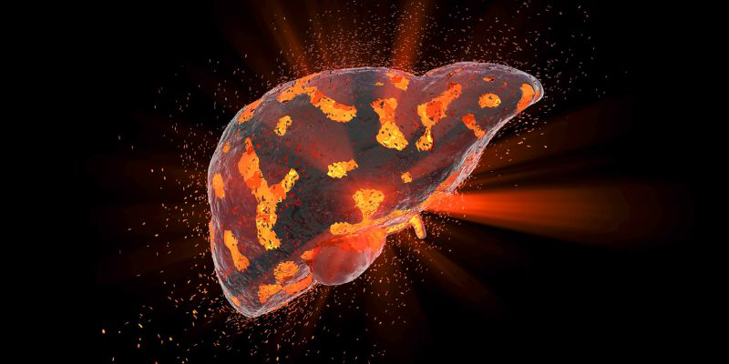 What is hepatitis