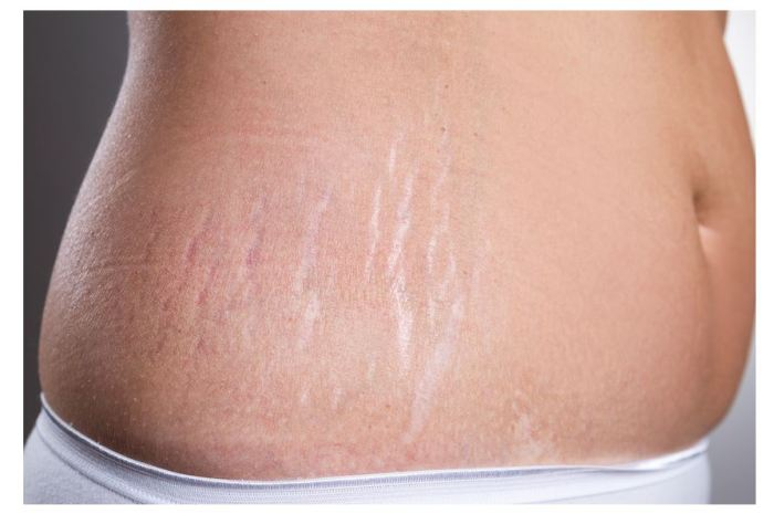 Best Stretch Marks Cream in Nigeria