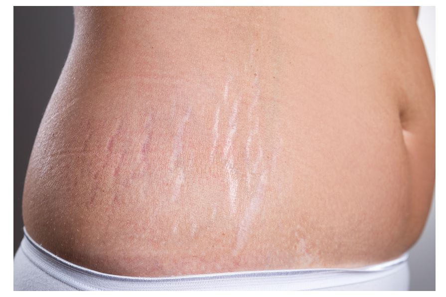 Stretch Marks Causes