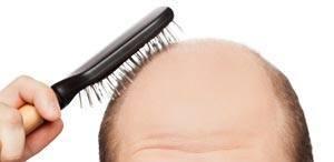 bald-cut
