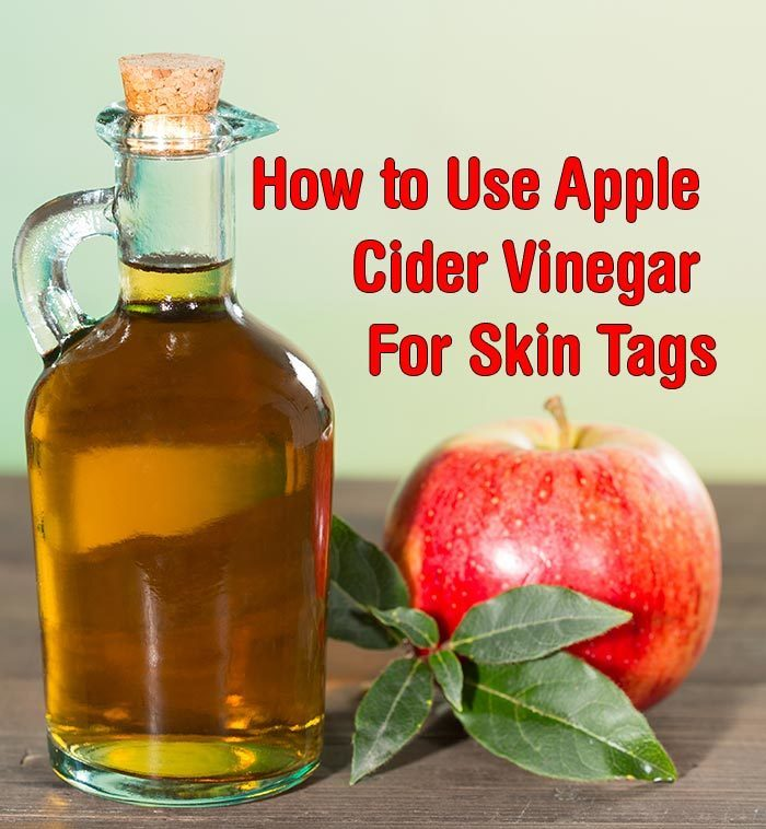 how to get rid of gallstones with apple cider vinegar