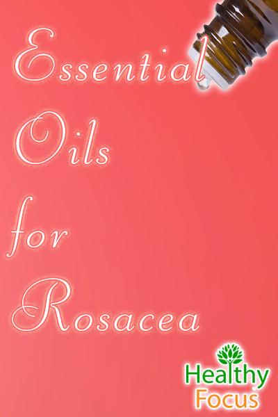 mig-essential-oils-for-rosacea