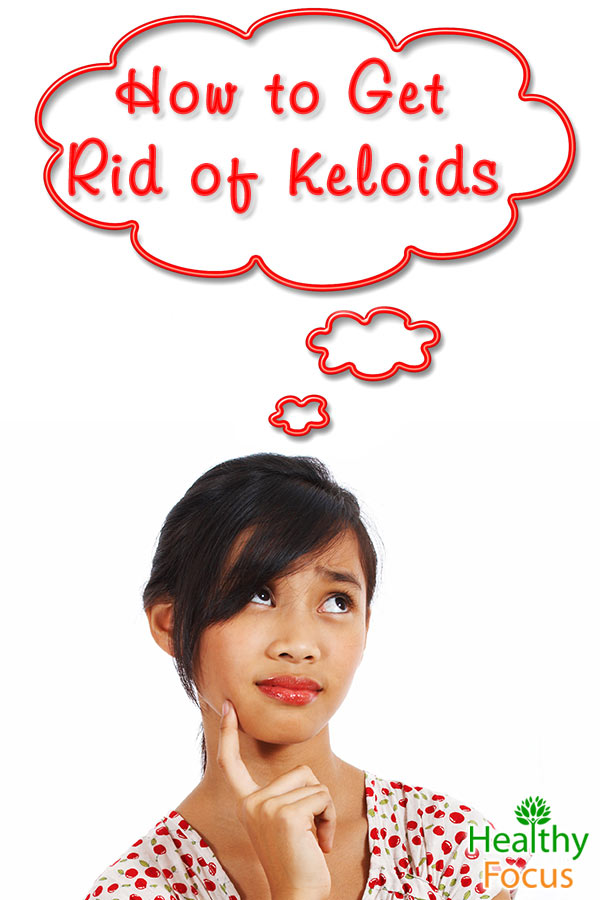 Natural Ways To Get Rid Of Keloids