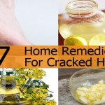 Cracked Feet – 7 Grandma's Home Remedies