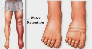 6 Things That Cause Fluid Retention in Your Body and How to Avoid Them!