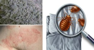 1.5 Million Dust Mites Are Living In Your Bed! How to Destroy Them?