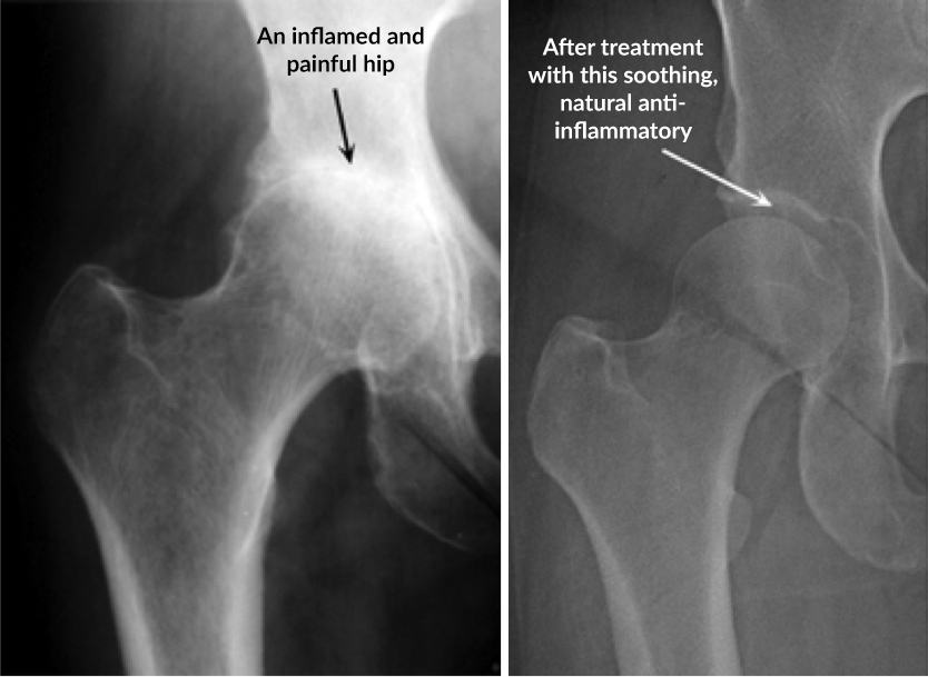 xray-of-joints