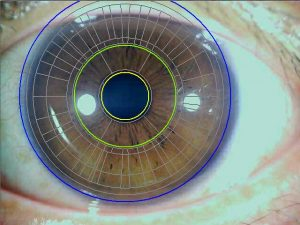 Iris analysis