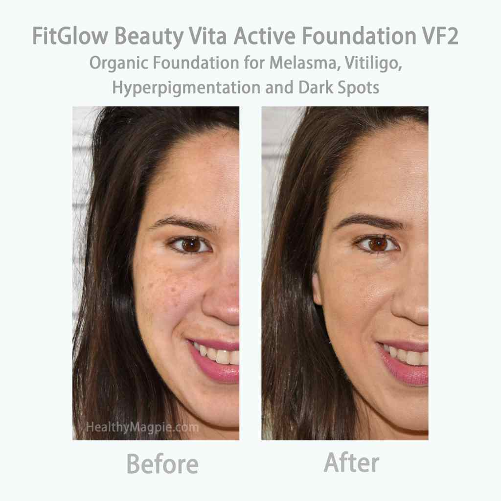 Before and after comparison pictures and swatches of FitGlow Beauty Vita Active organic foundation covering my melasma mustache, dark spots, hyperpigmentation and vitiligo.