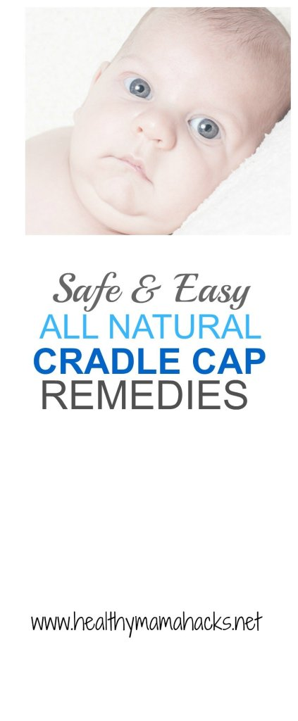Clear up your baby's cradle cap safely and easily with these great natural home remedies!