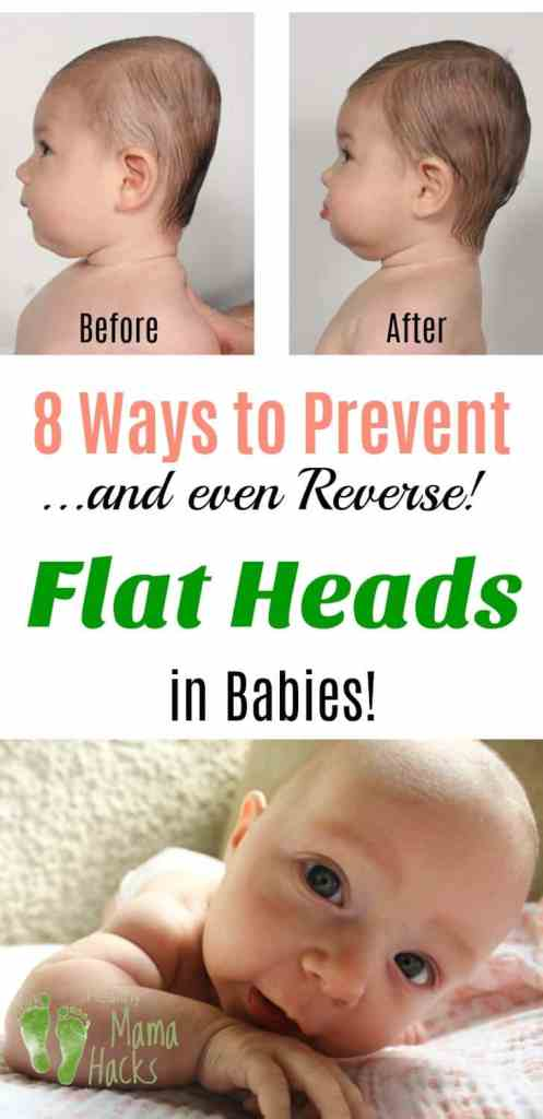 How to prevent and reverse plagiocephaly