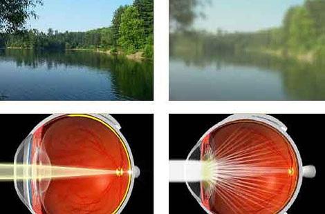 vision correction - compasscayman