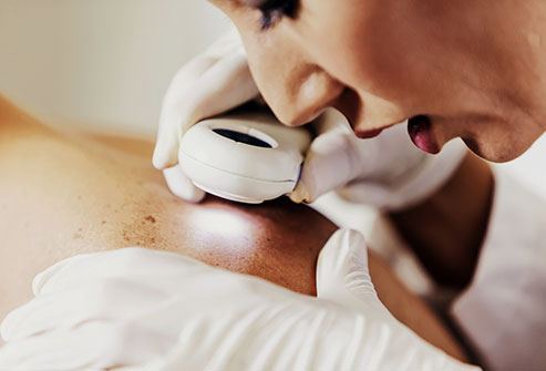 493ss_getty_rf_dermatologist_checking_skin