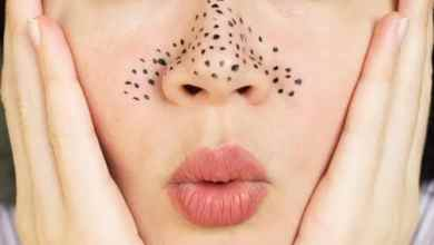 Photo of Causes of the emergence of blackheads