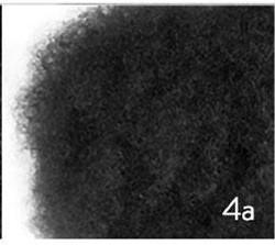 Type 4a Kinky Hair