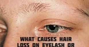 What causes hair loss on eyelash or eyebrow?