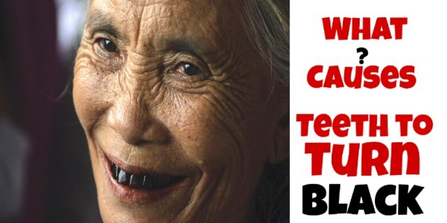 what causes teeth to turn black