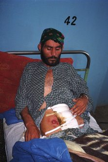 Injured soldier at Qala-i-Jhangi