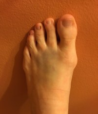 This image shows my foot with a visible bruise on top. This photo was taken after I dropped something on my foot (a different injury than the puncture wound and internal scar tissue that I'm now dealing with).