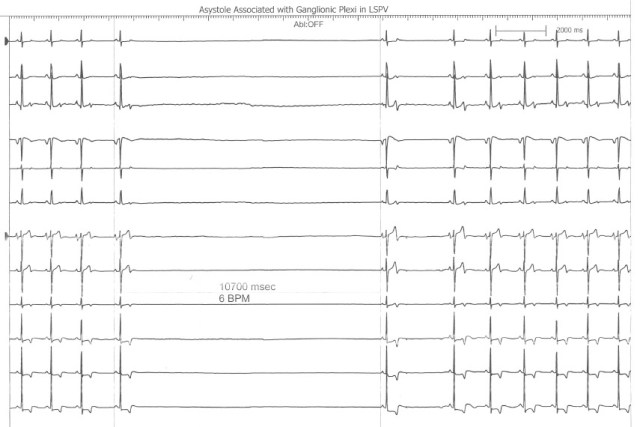 Asystole During Ganglionic Plexi Ablation in LSPV