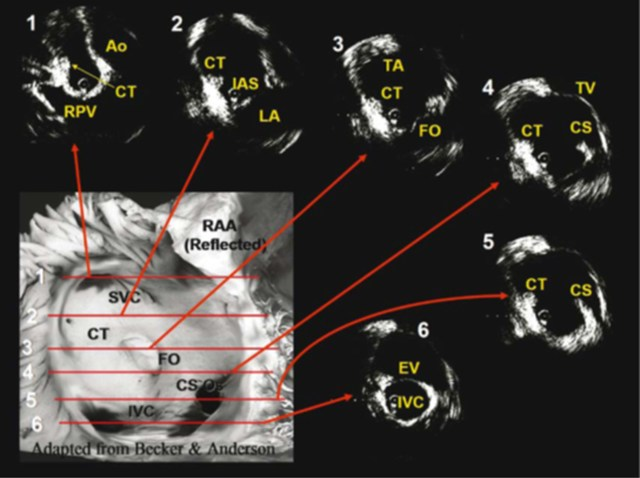 Figure 4  Radial ICE Assessment of RA Anatomy. Figure from Springer, Journal of Interventional Cardiac Electrophysiology