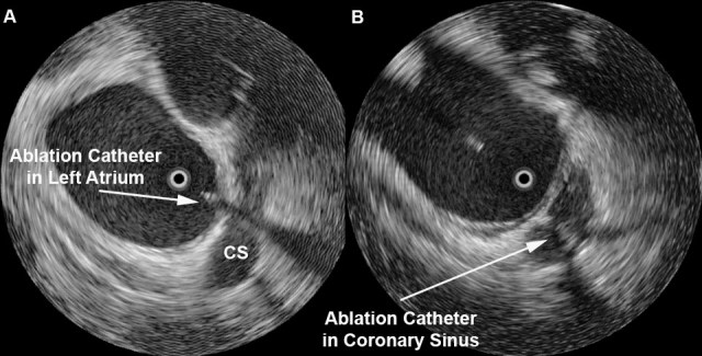 Ablation Near Mitral Annulus