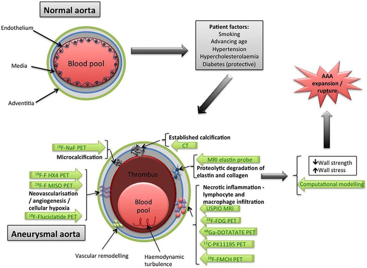 Monitoring The Biological Activity Of Abdominal Aortic