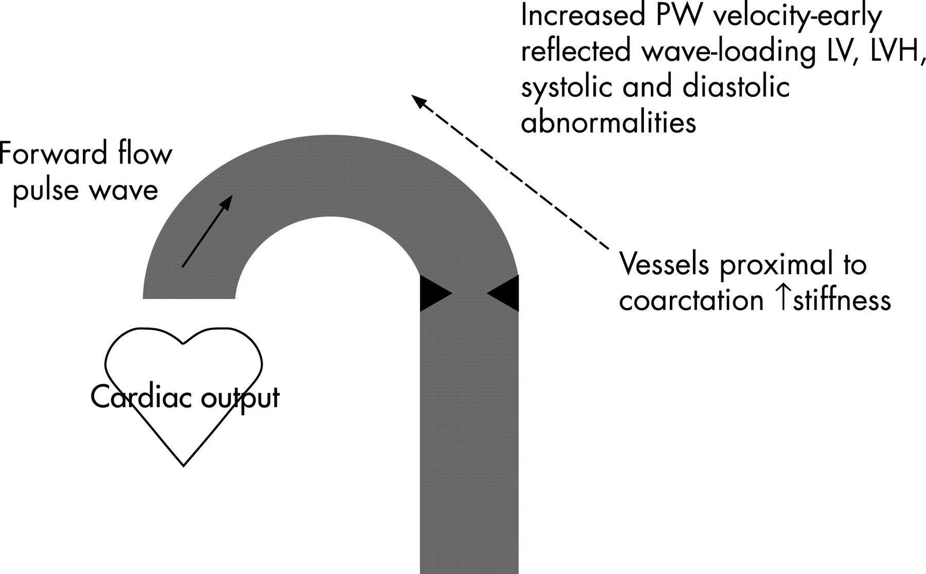 Effect Of Endovascular Stenting Of Aortic Coarctation On