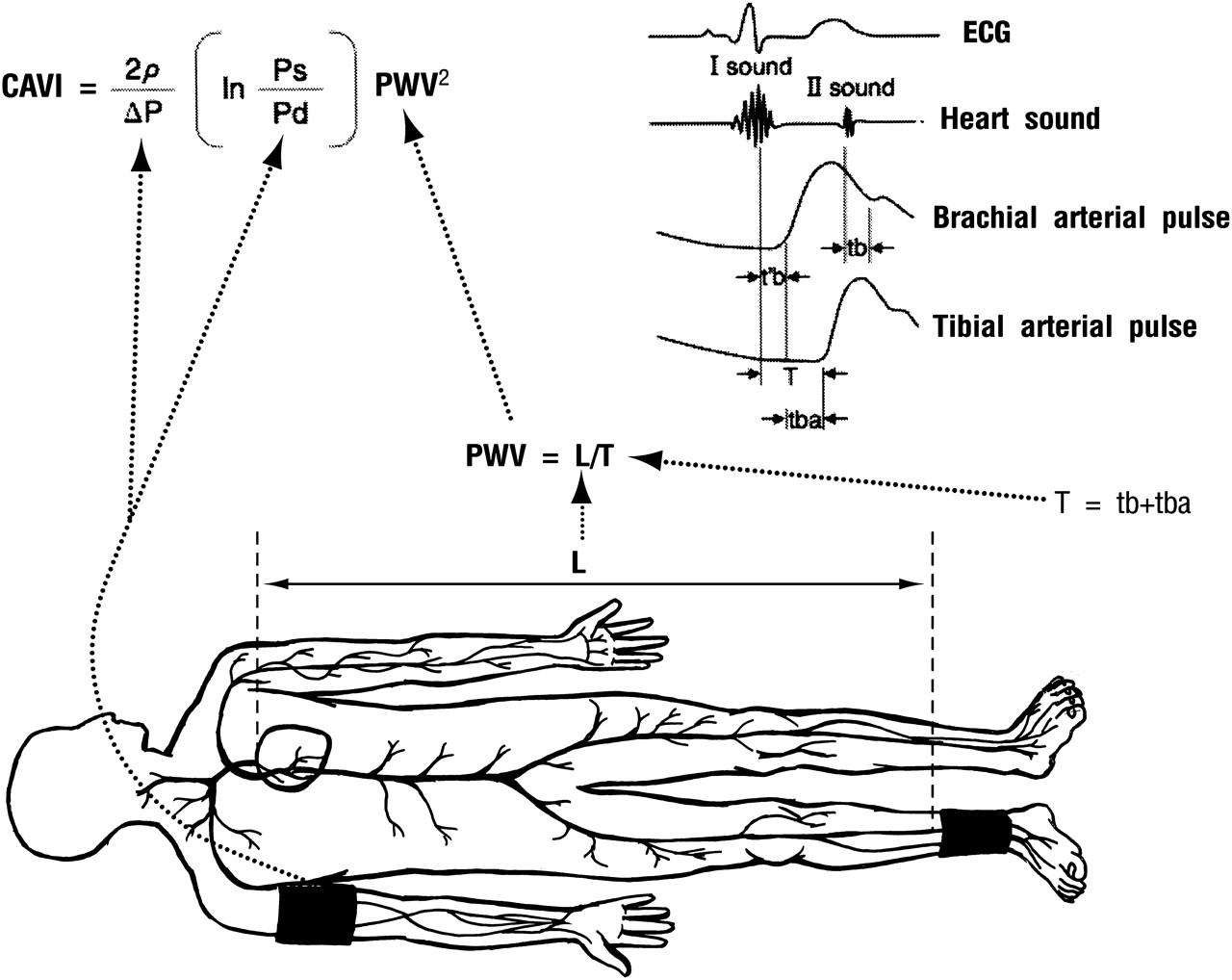 Arterial Stiffness Contributes To Coronary Artery Disease
