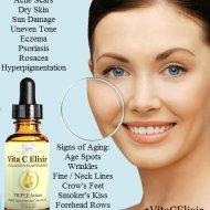All in One Remedy Vita C Elixir By Aura Naturel #VitaCElixir
