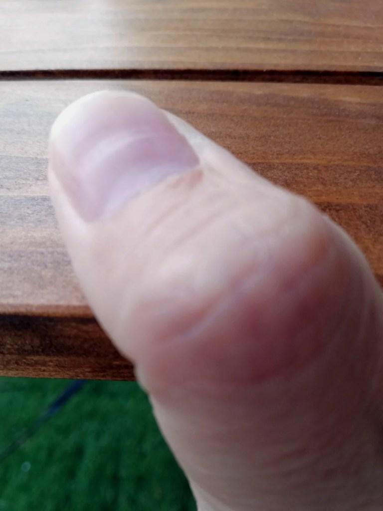 私の凹んでしまった親指の爪