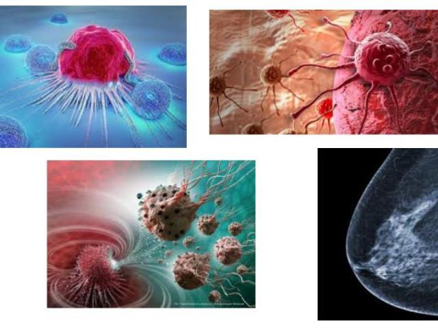 #cancer#ayurveda#arbuda