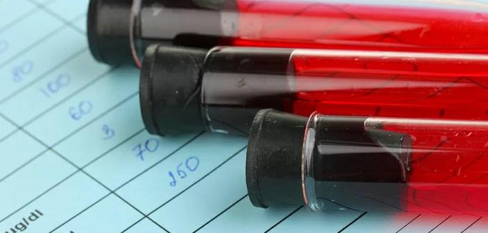 average blood glucose