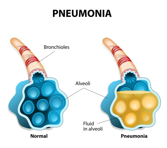 pneumonia vaccine dr vivek baliga